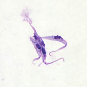 اپی ماستیگوت تریپانوزوما کروزی Trypanosoma cruzi epimastigote