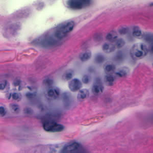 T. cruzi amastigotes in heart tissue.