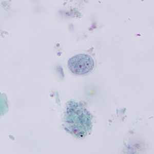 Figure D: Cyst of <em>E. nana</em> stained with trichrome.