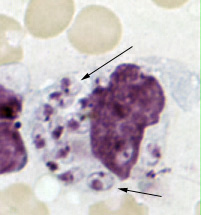 Figure C: <em>Leishmania tropica amastigotes</em> from an impression smear of a biopsy specimen from a skin lesion. In this figure, an intact macrophage is practically filled with amastigotes (arrows), several of which have a clearly visible nucleus and kinetoplast.