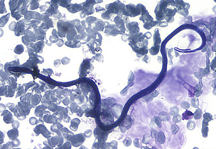 Figure D: Microfilaria of <em>L. loa</em> in a thin blood smear, stained with Giemsa.