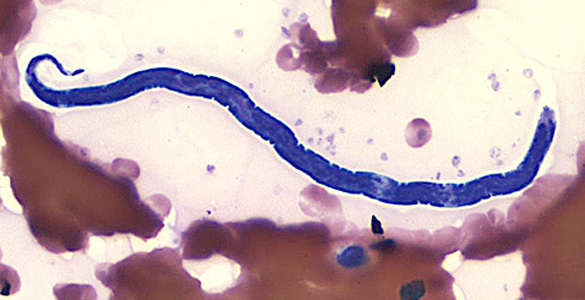 Figure F: Microfilaria of <em>L. loa</em> in a thin blood smear, stained with Giemsa.
