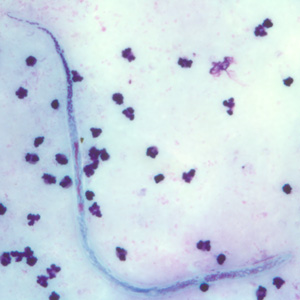 Figure C: Microfilaria of <em>W. bancrofti</em> in a thick blood smear, stained with Giemsa.