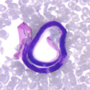 Figure B: Microfilaria of <em>B. malayi</em> in a thin blood smear, stained with Giemsa.