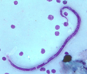 Figure A: Microfilaria of <em>B. timori</em> in a thick blood smear from a patient from Indonesia, stained with Giemsa and captured at 500x oil magnification. Image from a specimen courtesy of Dr. Thomas C. Orihel, Tulane University, New Orleans, LA.