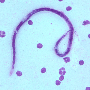 Figure B: Microfilaria of <em>B. timori</em> in a thick blood smear from a patient from Indonesia, stained with Giemsa and captured at 500x oil magnification. Image from a specimen courtesy of Dr. Thomas C. Orihel, Tulane University, New Orleans, LA.
