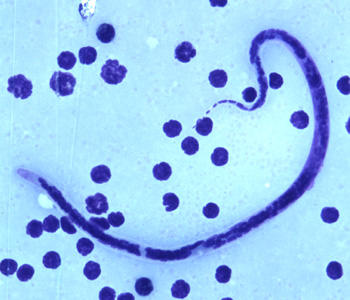 Figure C: Microfilaria of <em>B. timori</em> in a thick blood smear from a patient from Indonesia, stained with Giemsa and captured at 500x oil magnification. Image from a specimen courtesy of Dr. Thomas C. Orihel, Tulane University, New Orleans, LA.