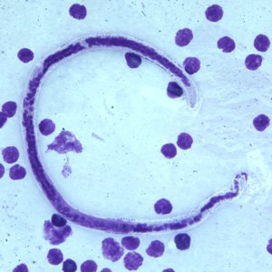 Figure D: Microfilaria of <em>B. timori</em> in a thick blood smear from a patient from Indonesia, stained with Giemsa and captured at 500x oil magnification. Image from a specimen courtesy of Dr. Thomas C. Orihel, Tulane University, New Orleans, LA.