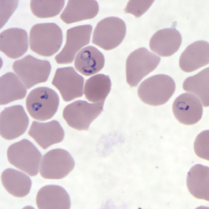 Figure G: Rings of <em>P. falciparum</em> in a thin blood smear.