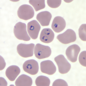 Figure H: Rings of <em>P. falciparum</em> in a thin blood smear.