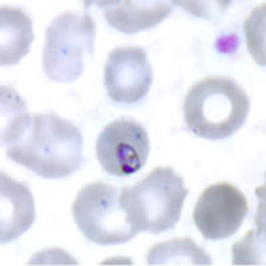 Figure C: Ring-form trophozoite of <em>P. malariae</em> in a thin blood smear.