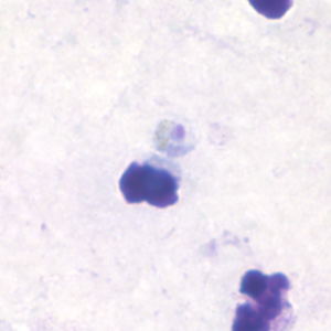 Figure B: Trophozoite of <em>P. malariae</em> in a thick blood smear.