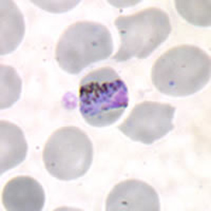 Figure A: Band-form trophozoite of <em>P. malariae</em> in a thin blood smear.