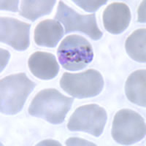 Figure B: Band-form trophozoite of <em>P. malariae</em> in a thin blood smear.