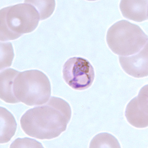 Figure A: Basket-form trophozoite of <em>P. malariae</em> in a thin blood smear.