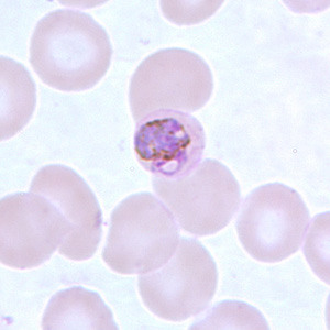 Figure C: Basket-form trophozoite of <em>P. malariae</em> in a thin blood smear.