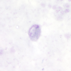 Figure A: Gametocyte of <em>P. malariae</em> in a thick blood smear.