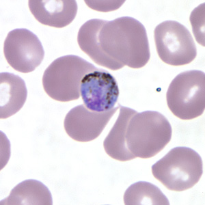 Figure C: Gametocyte of <em>P. malariae</em> in a thin blood smear.