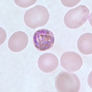 Figure E: Developing gametocyte of <em>P. malariae</em> in a thin blood smear.