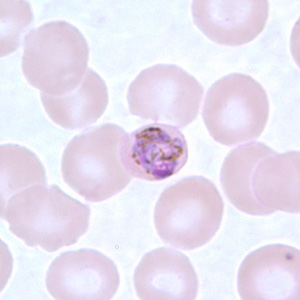 Figure F: Developing gametocyte of <em>P. malariae</em> in a thin blood smear.