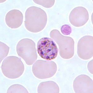 Figure G: Schizont of <em>P. malariae</em> in a thin blood smear.