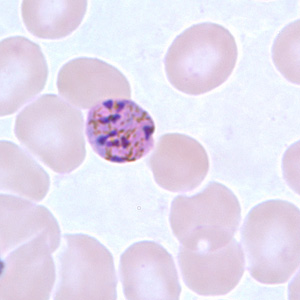 Figure H: Schizont of <em>P. malariae</em> in a thin blood smear.