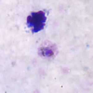 Figure A: Trophozoite of <em>P. ovale</em> in a thick blood smear.