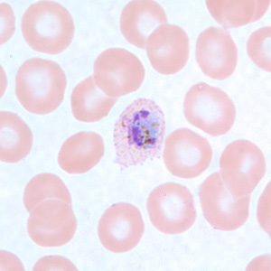 Figure D: Trophozoite of <em>P. ovale</em> in a thin blood smear. Note the fimbriation and Schüffner's dots.