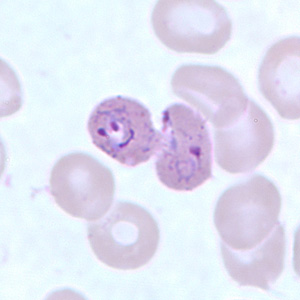 Figure E: Trophozoites of <em>P. ovale</em> in a thin blood smear.