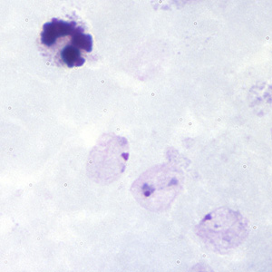 Figure B: Ring-form trophozoites of <em>P. vivax</em> in a thick blood smear.
