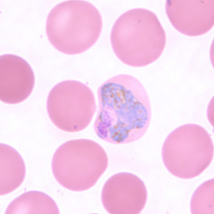 Figure F: Trophozoite of <em>P. vivax</em> in a thin blood smear. The infected RBCs are also noticeably larger than the uninfected RBCs.