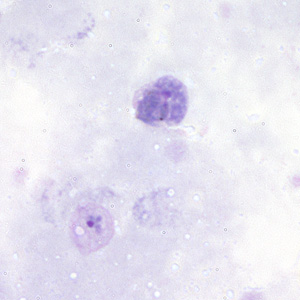 Figure A: Gametocyte (upper) and trophozoite (lower) of <em>P. vivax</em> in a thick blood smear.