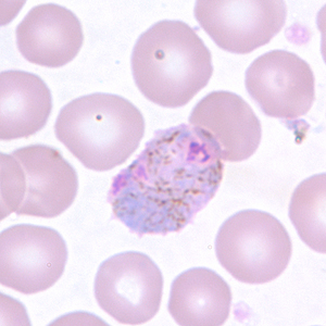 Figure D: Macrogametocyte of <em>P. vivax</em> in a thin blood smear. Note the enlargement of the gametocytes compared to uninfected RBCs.