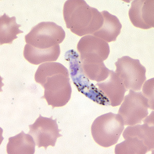 Figure E: Ookinete of <em>P. vivax</em> in a thin blood smear.
