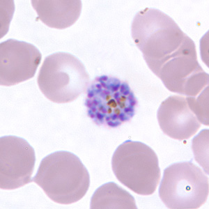 Figure H: Schizont of <em>P. vivax</em> in a thin blood smear.