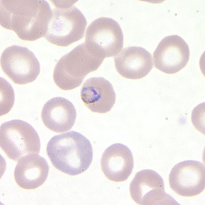 Figure B: Trophozoite of <em>P. falciparum</em> in a thin blood smear.