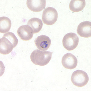 Figure C: Trophozoite of <em>P. falciparum</em> in a thin blood smear.