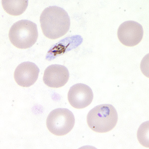 Figure D: Trophozoite of <em>P. falciparum</em> in a thin blood smear. In this figure, a gametocyte can also be seen in the upper half of the image.