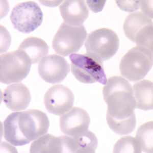Figure D: Gametocyte of <em>P. falciparum</em> in a thin blood smear. Also seen in this image are ring-form trophozoites and an RBC exhibiting basophilic stippling (upper left).
