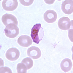 Figure F: Gametocyte of <em>P. falciparum</em> in a thin blood smear. In these specimens, Laveran's bibs can be seen.