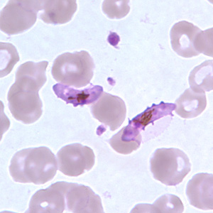 Figure G: Gametocytes of <em>P. falciparum</em> in a thin blood smear. In these specimens, Laveran's bibs can be seen.