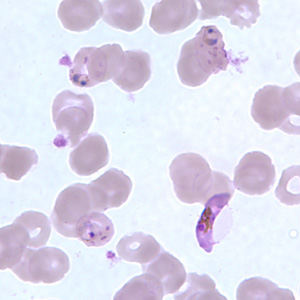 Figure H: Gametocyte of <em>P. falciparum</em> in a thin blood smear, showing Laveran's bib. Also seen in this image are ring-form trophozoites exhibiting Maurer's clefts.