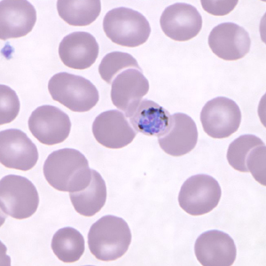 Figure A: Gametocyte of <em>P. knowlesi</em> in a Giemsa-stained thin blood smear from a patient that traveled to the Philippines. Image courtesy of the Wadsworth Center, New York State Department of Health.