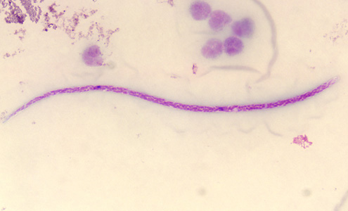 Figure F: Microfilaria of <em>M. perstans</em> in a thick blood smear stained with Giemsa. Image courtesy of the Parasitology Department, Public Health Lab, Ontario Agency for Health Protection and Promotion, Canada.