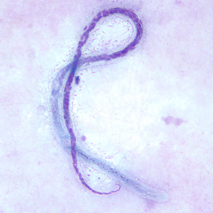 Figure D: Microfilaria of <em>M. ozzardi</em> in a thick blood smear, stained with Giemsa. Note the hook-like end to the tail in this figure.