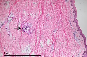 Figure A: Coiled female <em>M. streptocerca</em> (arrow) found ~1.5 mm below the surface of the skin, hematoxylin and eosin stained.