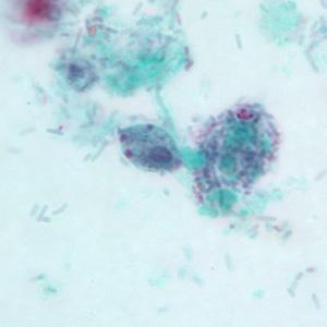 trichomonas hominis cuadro clinico
