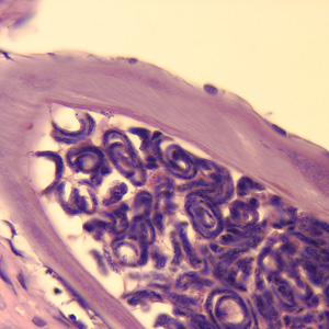 Figure E: Cross-section of an adult female <em>O. volvulus</em>, stained with H&E. Note the presence of many microfilariae within the uterus.