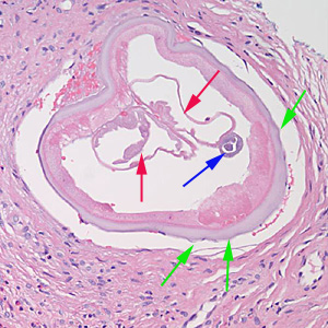 Figure E: Cross-section of an adult female <em>Onchocerca</em> sp. from the biopsy of a scalp nodule from a patient from Liberia. Note the presence of the intestine (blue arrow), uterine tubes (red arrows) and some cuticular nodules (green arrows). Also notice the weak musculature under the thick cuticle. Image courtesy of Drs. Philip LeBoit and Paul Borbeau.