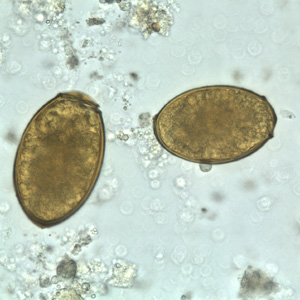 Figure C: Eggs of <em>P. westermani</em> in an unstained wet mount.